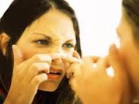 Cara menghilangkan jerawat alami di wajah