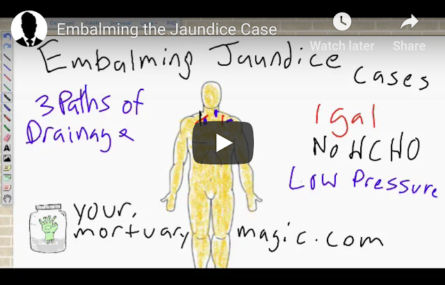 emablming the jaundice case thumbnail