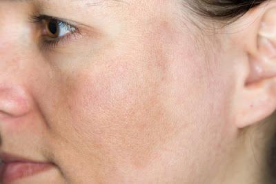 5 Natural Cures for Hyperpigmentation
