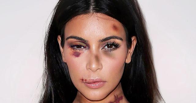 Kim Kardashian Ditodong Lalu Dirampok di Paris, Perhiasan Miliaran Rupiah Melayang