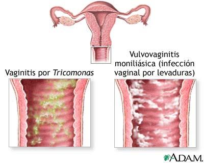 Flujo en la vagina