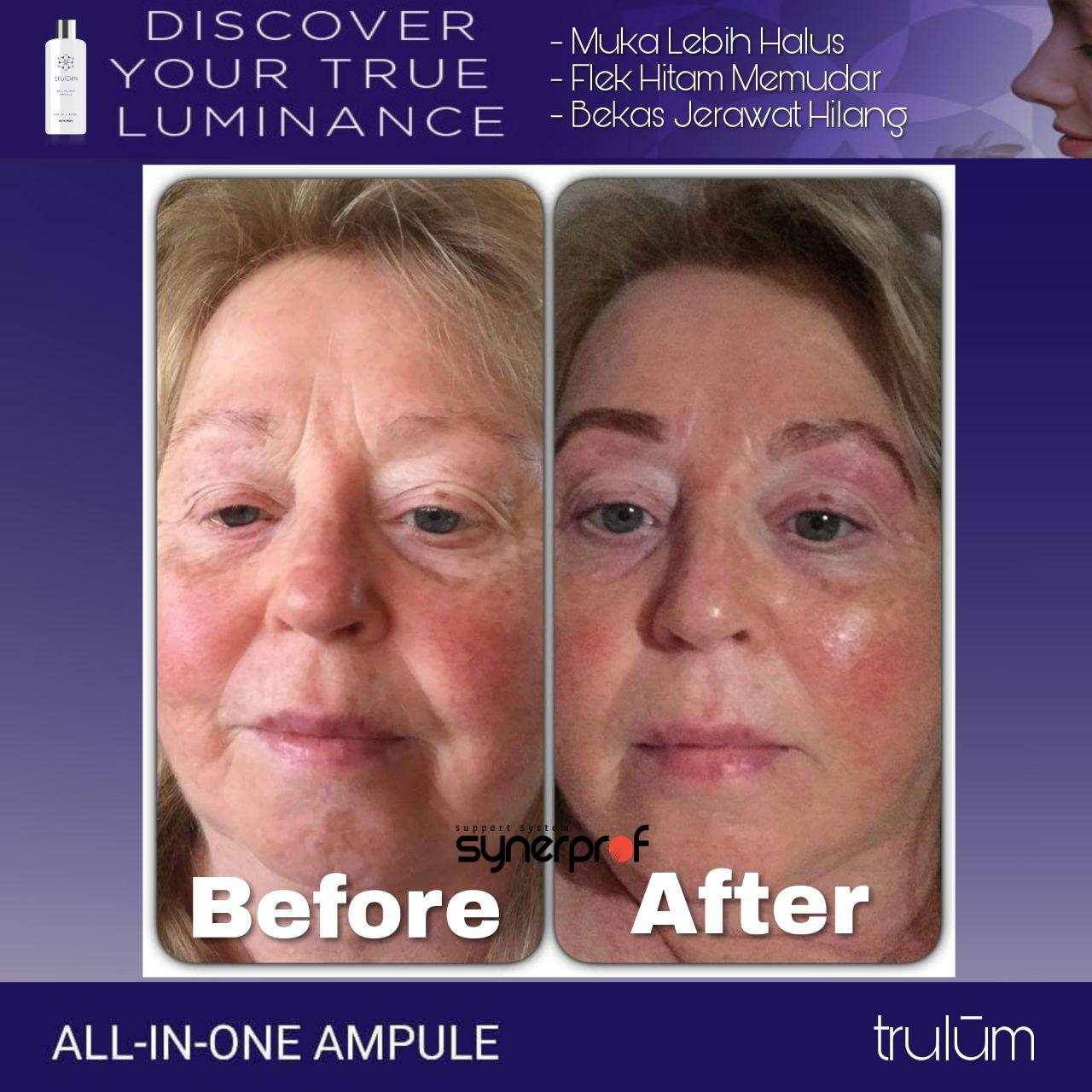 Jual Trulum All In One Ampoule Di Takisung WA: 08112338376