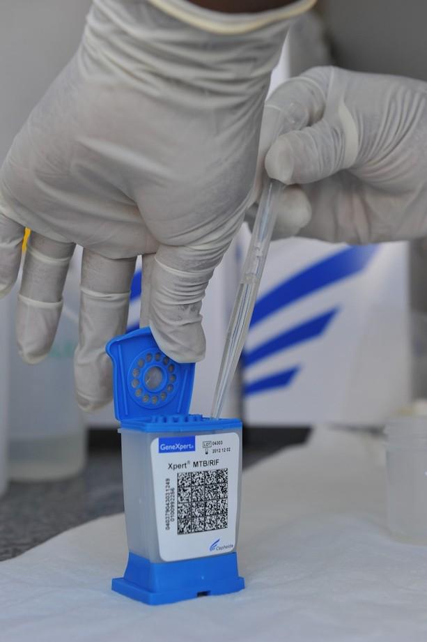 Sputum test may not hold key to TB eradication study \u2013 Texila Connect
