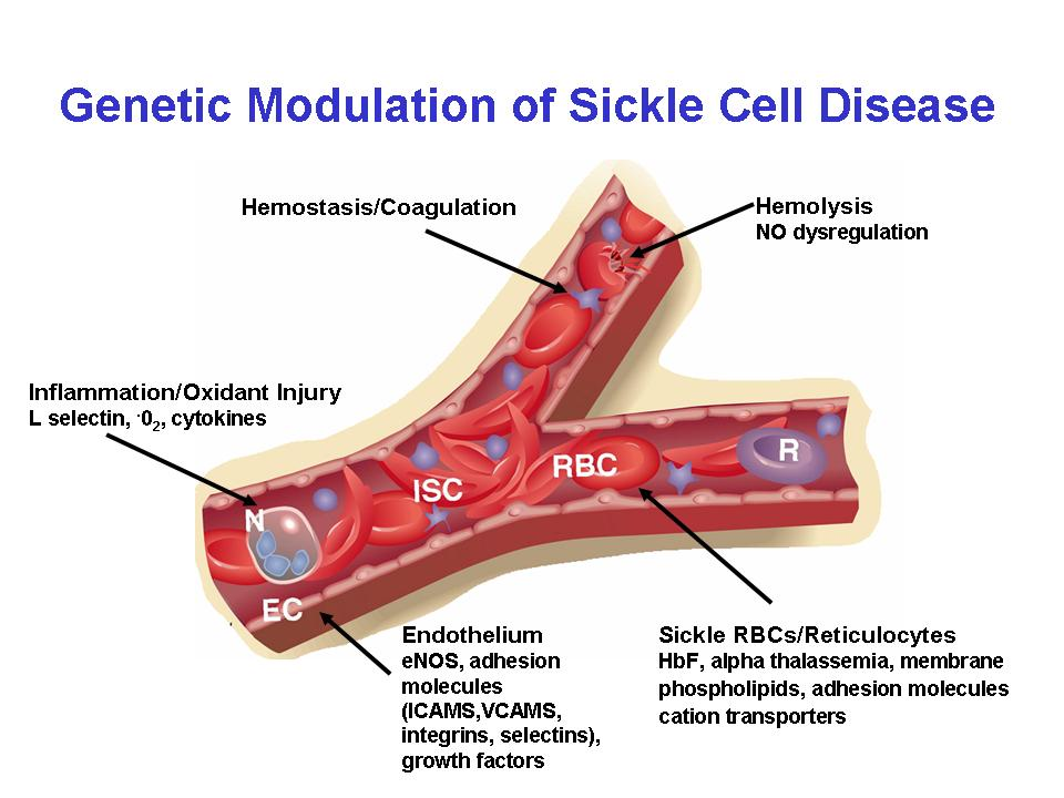 Sickle cell anaemia ~ Dentistry and Medicine