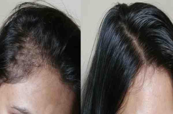 تكثيف الشعر الخفيف