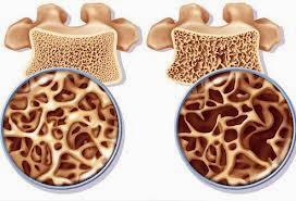 Pengobatan Untuk Mengatasi Tulang Keropos Secara Alami, Efektif Dan Cepat