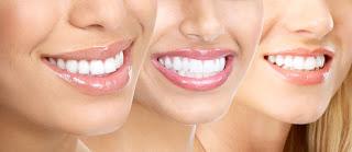 Tẩy trắng răng Laser - Bạn đã biết chưa?