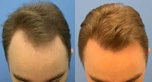 saç ekimi öncesi ve sonrası foto 27