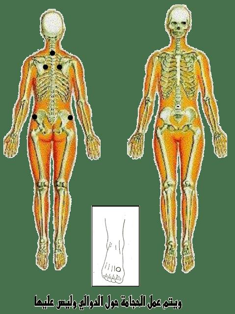 نقاط الحجامة لعلاج دوالي الساقين