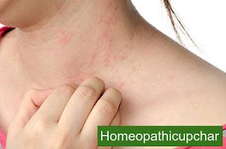 चर्म रोग, स्किन एलर्जी के सावधानियां और बचाव !