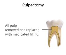 pulpotomy vs pulpectomy
