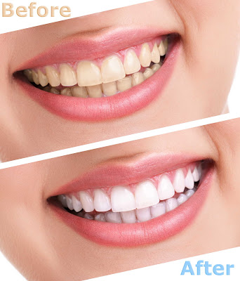 Teeth Whitening Benefits