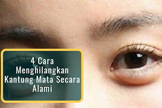 4 Cara Menghilangkan Kantung Mata Secara Alami