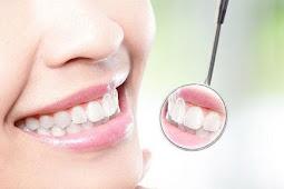 Cara Membersihkan Karang Gigi Paling Ampuh