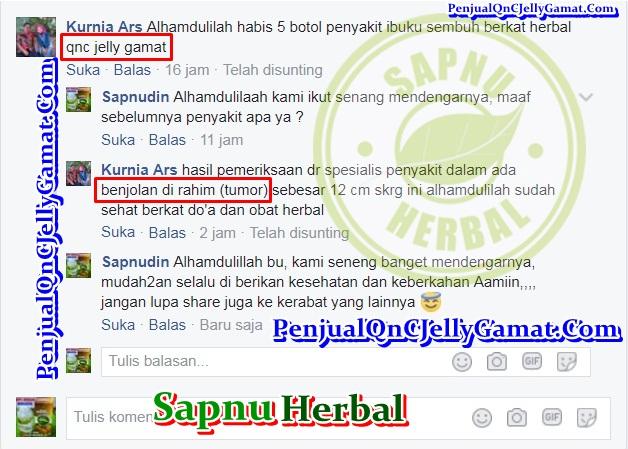Obat Penghilang Benjolan di Daun Telinga ini PALING AMPUH dan No.1 Di Indonesia