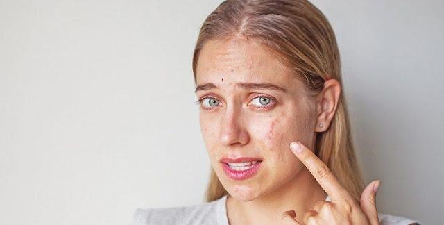 كيفية التخلص من ندبات حب الشباب - العلاجات الطبيعية ومستحضرات التجميل