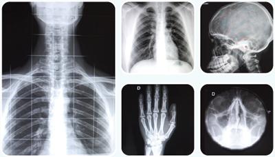 Cd Online de Radiologia