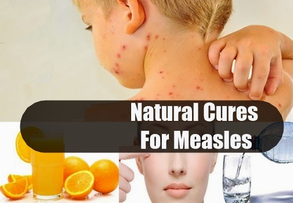 http://www.nhtips.com/2015/03/best-home-remedies-for-measles.html