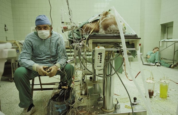 Heart surgeon after 23-hour-long (successful) heart transplant