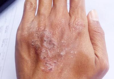 kulit kering kerena eksim atopic dermatitis