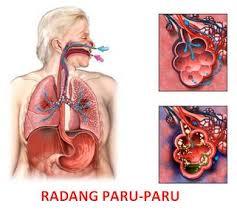 Pengobatan Untuk Sembuhkan Radang Paru-Paru (Pneumonia)