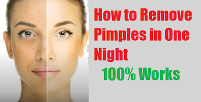 How to Remove Pimples in One Night - 100% Works