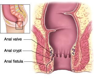 bulto adenomatoso en la próstata
