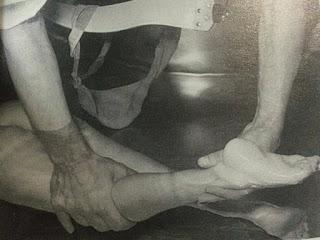 Fisioterapia en los primeros años Artrogriposis