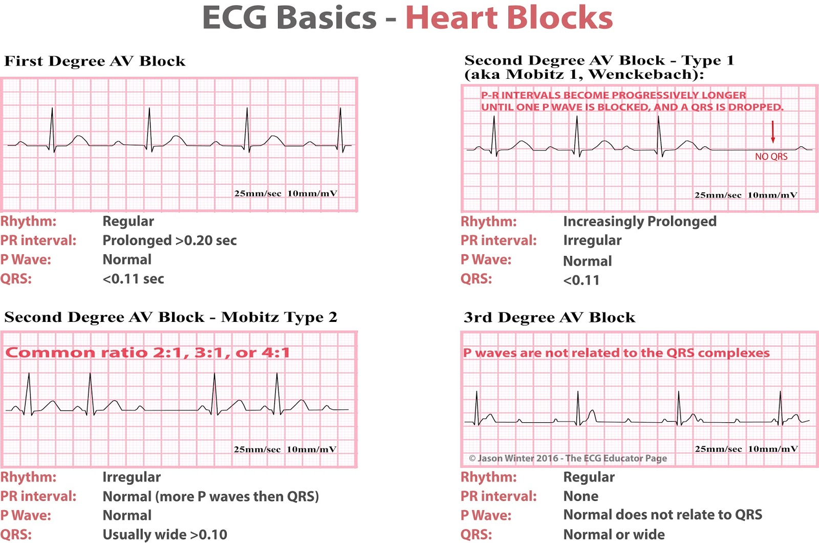ekg rhythm strips of heart block new-found brief