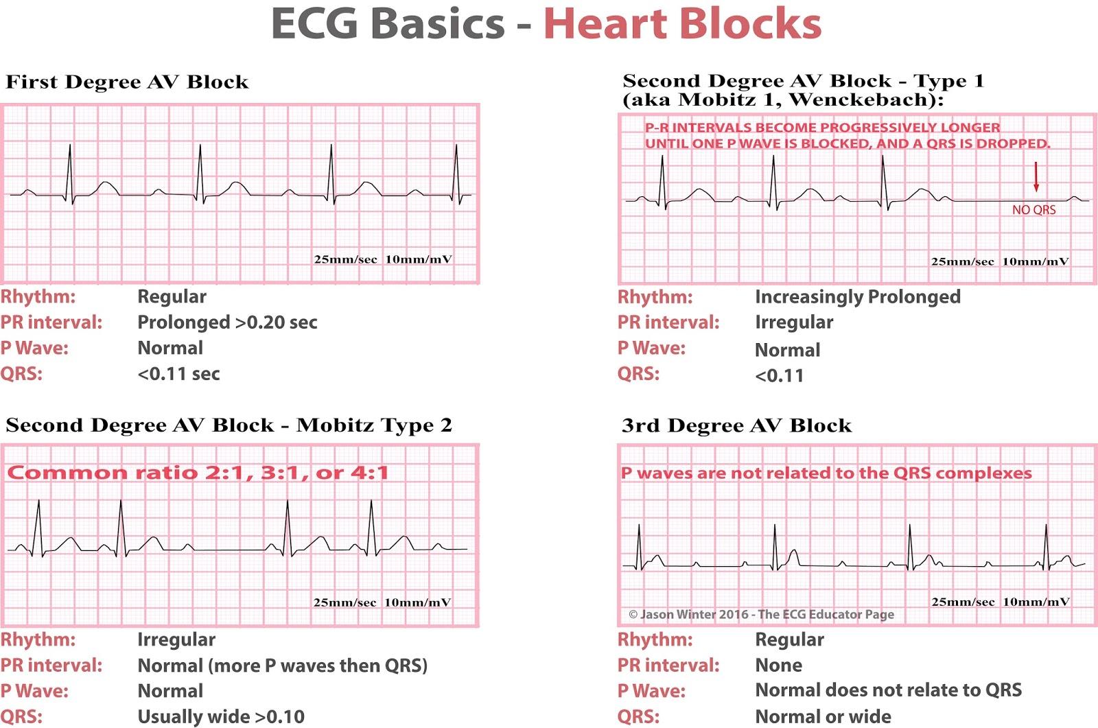 Ecg Educator Blog Heart Blocks