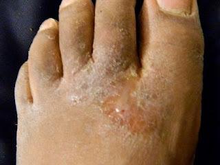 Cara simple mengobati eksim kering di telapak dan sela jari kaki yang sudah parah