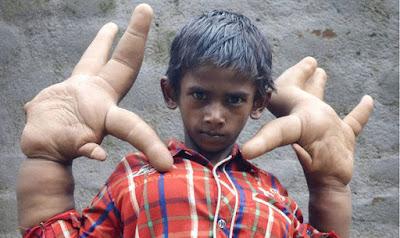 Kasihan, anak lelaki ini memiliki tangan terbesar di dunia