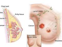 obat kanker stadium 4 alami yang manjur