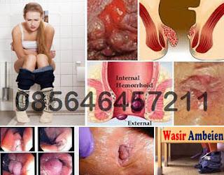 Obat Berak Darah Campur Lendir