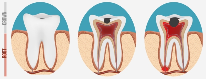 Abscessed Tooth Pain Relief Home Remedies
