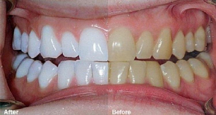قامت بمزج هذين المكونيين لتحصل على أسنان مذهلة