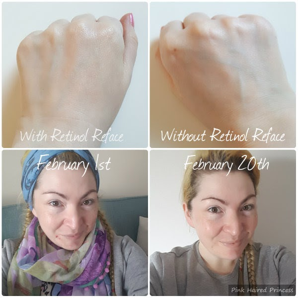 Collage of Retinol Reface applied on back of hand and hand without. Self portrait showing adult acne and improvement in skin appearance and texture after using Retinol Reface serum for 3 weeks.
