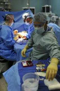 transplantasi wajah