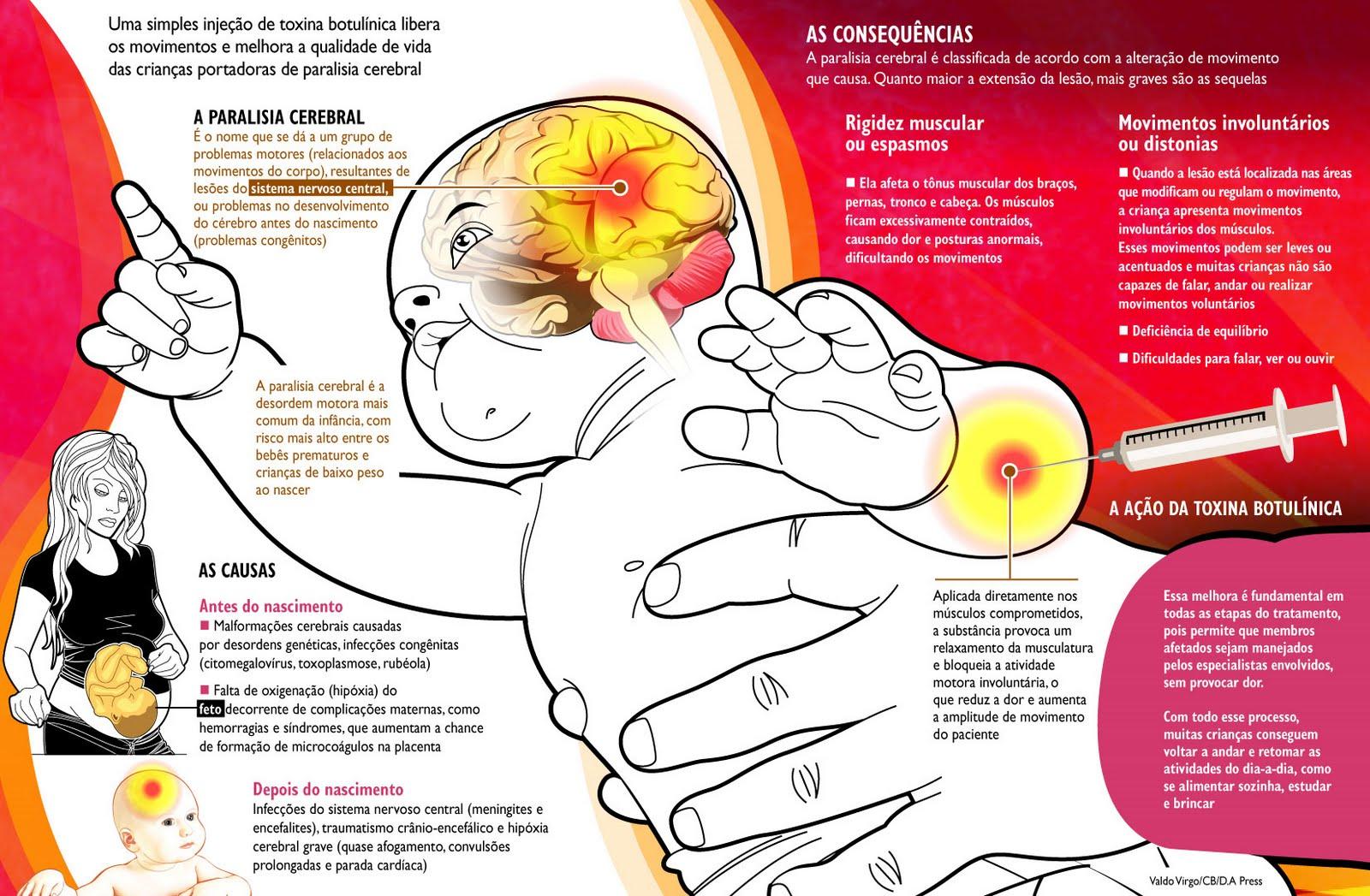 Paralisia Cerebral e Suas Consequências