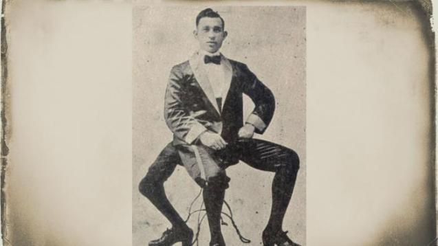 Francesco Lentini, Manusia Berkaki Tiga