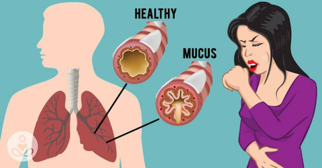 How To Get Rid of Mucus And Phlegm in Your Chest And Throat As Fast As Possible