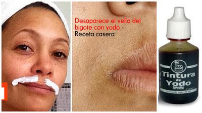 depilación-vello-bigote