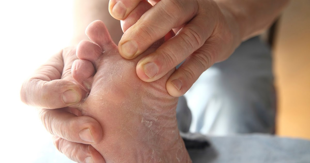 Han quitado la uña en el pie como curar