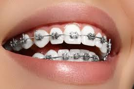 Best Dentsl Clinic in Nagpur