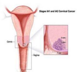 Yang Harus Dilakukan jika Didiagnosa Kanker Serviks Stadium 1 - IA
