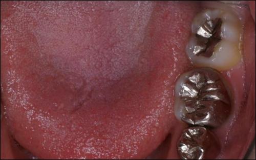 ハゲは幼少期の虫歯治療が原因?金属アレルギーと脱毛の関係!