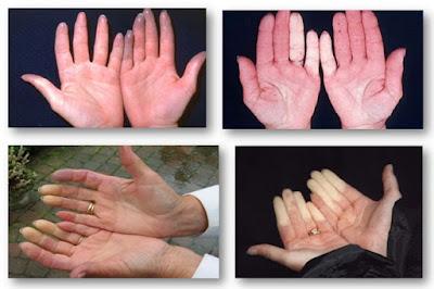 Si vos mains sont tout le temps froides, votre santé court un risque Très Grave !