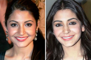 Anushka Sharma sebelum dan sesudah operasi plastik