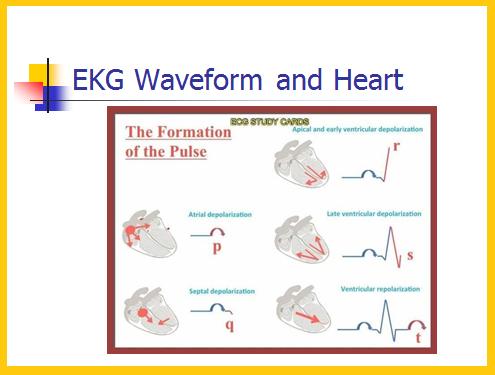 Telemetry Technician Course Ekg Waveform Class 3