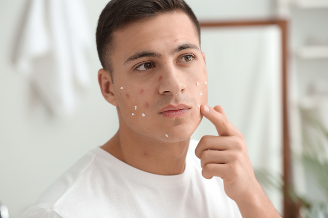 Acne Remedies at Home